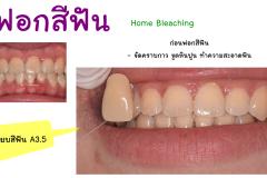 bleaching3